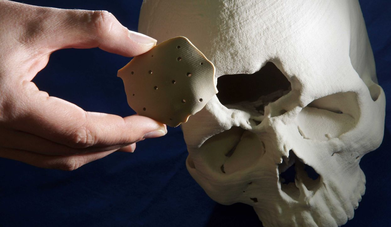 Knochenimplantat - Bildquelle: dpa