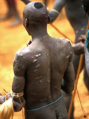 Narben auf dem Rücken - Bildquelle: Richard Gress