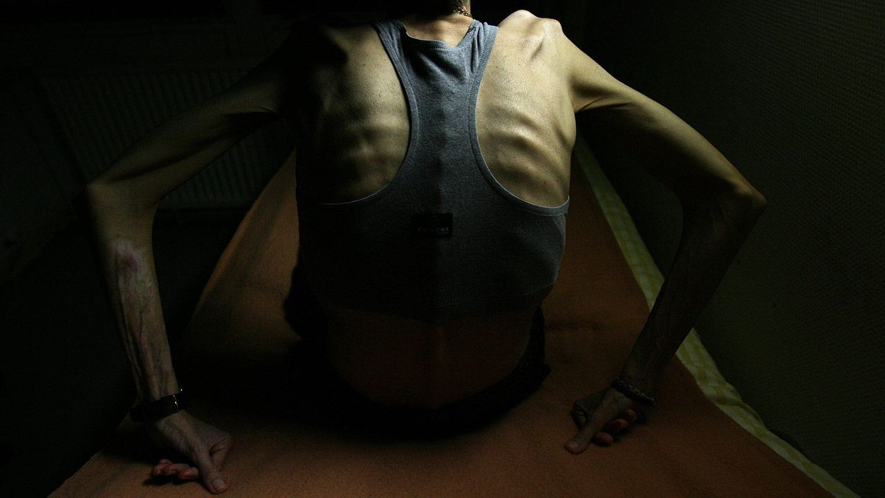 Körper extrem - Bildquelle:  AFP
